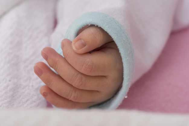 В Индии родился ребенок-русалка
