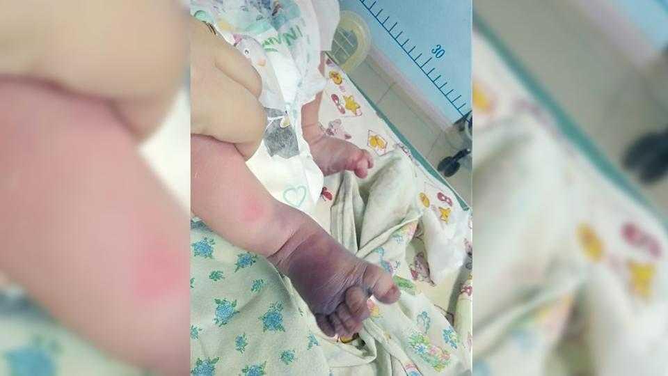 Женщина и ребенок едва не умерли при домашних родах без врача